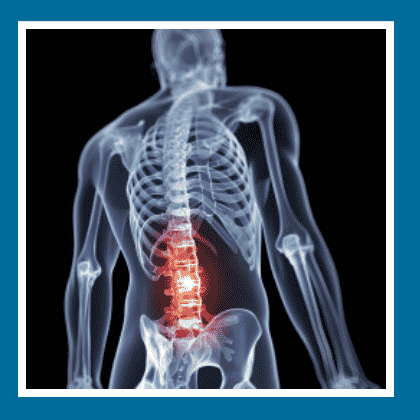 Lower Back Pain Symptoms